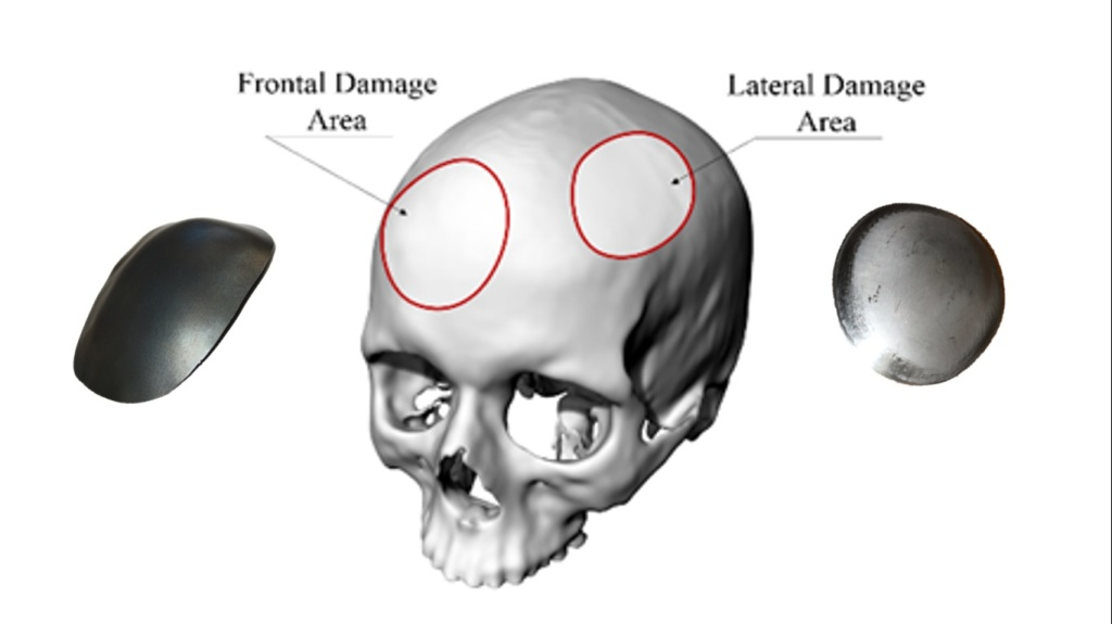 cranial prothesis techniques Kyon total hip replacement breakthroughs bone cement is relied on to provide fixation of the prothesis to the cranial cruciate.
